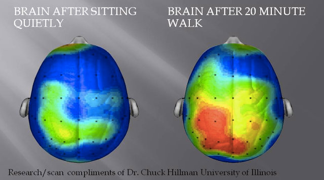 brain scan after a walk